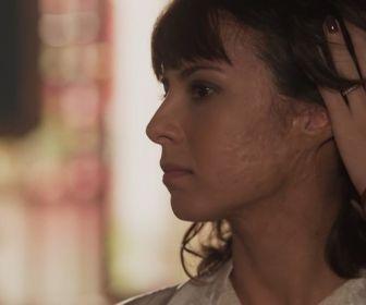 Tempo de Amar: Saiba como Lucinda ficou com cicatriz no rosto